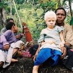 Albinistic_girl_papua_new_guinea